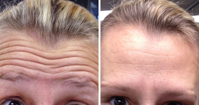 Botox auckland before and after