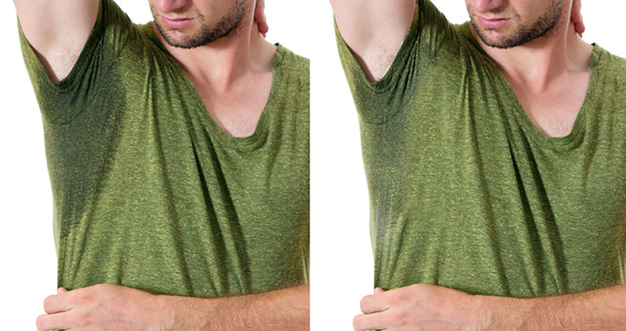 Hyperhidrosis Excessive Sweating