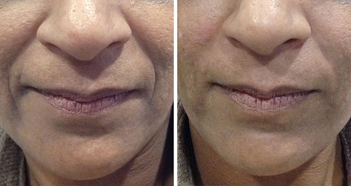 Dermal_Filler_Nasolabial_Folds